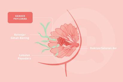 Kanker payudara dapat meluas hingga kelenjar getah bening