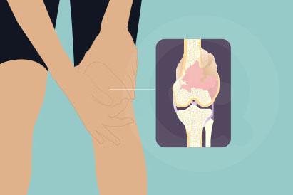Ada 3 jenis kanker yaitu osteosarkoma, chondrosarcoma, dan sarkoma ewing