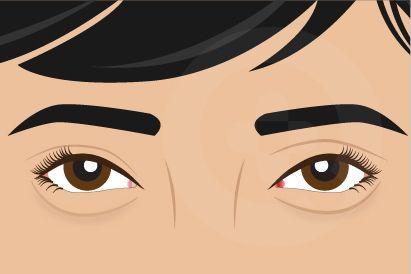 Kantong mata ditandai pembengkakan, kulit longgar, atau timbulnya lingkaran hitam di kelopak mata bawah