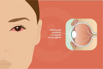 Konjungtivitis adalah infeksi pada membran transparan yang melapisi kelopak mata dan bagian putih bola mata