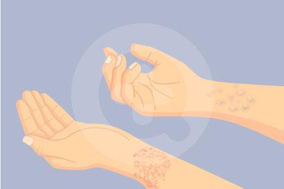 Lesi kulit adalah berbagai perubahan yang terjadi pada kulit misalnya luka, lecet atau benjolan