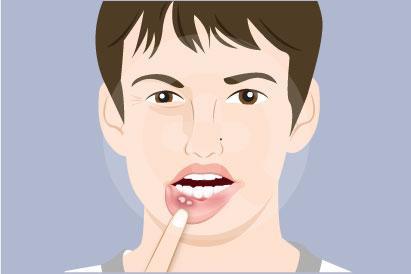 Bukan hanya sariawan, lesi mulut meliputi berbagai kerusakan di jaringan mulut