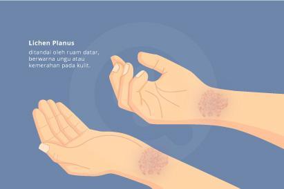 Mengidap hepatitis C meningkatkan risiko seseorang terkena lichen planus.