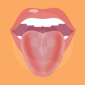 Lidah bengkak umumnya bukan merupakan kondisi yang berbahaya namun dapat disebabkan karena iritasi atau obat-obatan tertentu