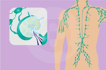 Kanker seperti Limfoma non-Hodgkin dapat diatasi dengan kemoterapi dan terapi radiasi.