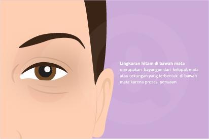 Lingkaran hitam di bawah mata umumnya disebabkan karena kelelahan dan penuaan.