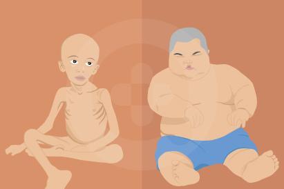 Ketidakseimbangan asupan energi dan protein dalam tubuh, bisa menyebabkan malnutrisi energi protein.