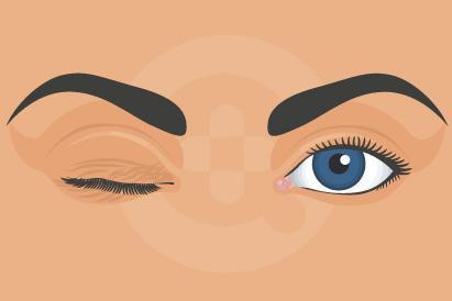 Mata Kedutan