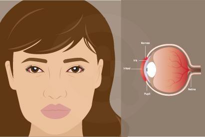 obat pelumas atau air mata buatan dapat digunakan untuk mengatasi mata kering dan iritasi