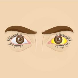 mata kuning dikenal juga sebagai scleral icterus