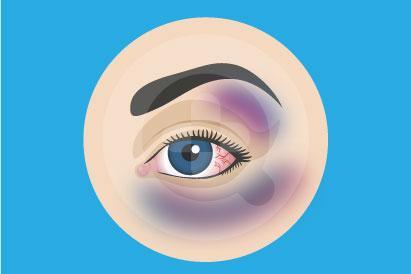 Mata lebam adalah kondisi ketika area mata memar akibat adanya perdarahan di bawah kulit