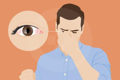 Mata lelah sering terjadi setelah mata digunakan secara intens atau terlalu lama