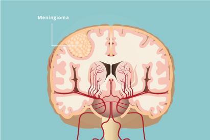 Meningioma adalah tumor jinak yang muncul pada meninges