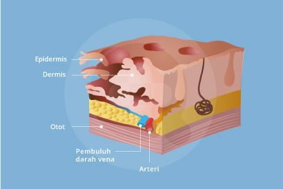Necrotizing fasciitis sering disebut dengan infeksi pemakan daging.