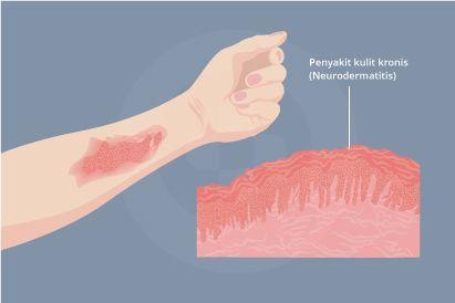 Neurodermatitis umunmya terjadi saat terjadi kontak dengan zat tertentu atau gigitan serangga