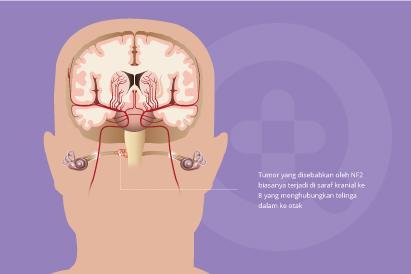 Neurofibromatosis tipe 2 termasuk kelainan genetik yang diwariskan atau disebabkan mutasi gen secara tiba-tiba.