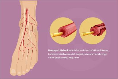 Neuropati diabetik adalah salah satu komplikasi diabetes