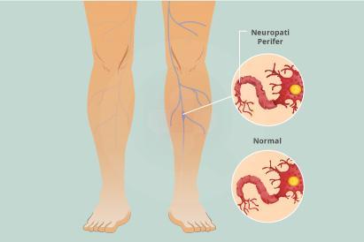 Penderita neuropati perifer biasanya merasakan sakit seperti tertusuk, terbakar, atau kesemutan