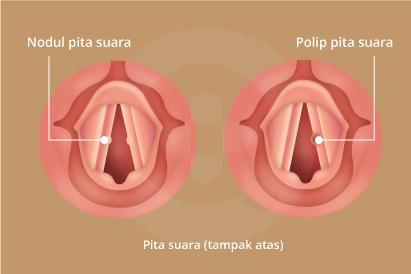 Nodul maupun polip pita suara dapat menyebabkan suara serak, napas bersuara, hingga adanya benjolan pada tenggorokan.