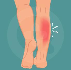 Nyeri betis bisa terjadi akibat kram otot maupun cedera