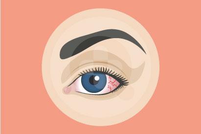 Nyeri di mata umumnya bisa hilang sendiri