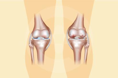 Nyeri osteoartritis terjadi ketika ujung-ujung tulang saling bergesekan