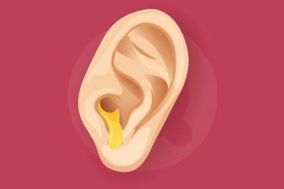Masuknya air ke telinga bisa menimbulkan otitis eksterna