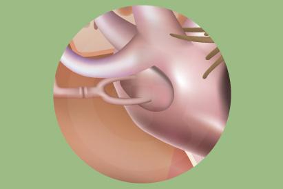 Otosclerosis termasuk penyebab paling sering dari masalah pendengaran pada kalangan dewasa muda