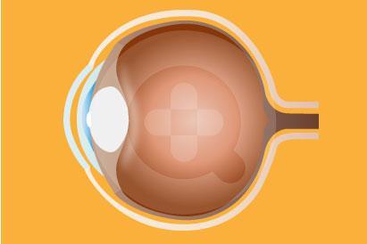 pandangan kabur biasanya disertai gejala lainnya seperti sakit kepala, sensitif terhadap cahaya atau iritasi pada mata