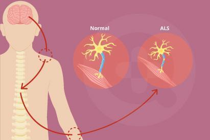 Amyotrophic lateral sclerosis (ALS) juga disebut penyakit Lou Gehrig