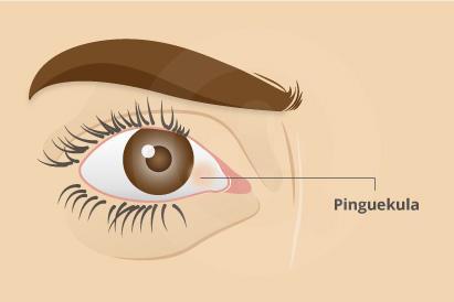 Gejala pinguekula adalah mata iritasi, kering, gatal, kemerahan dan meradang.