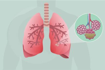 Pneumonia aspirasi terjadi saat makanan atau minuman yang dikonsumi seseorang masuk ke saluran pernapasan