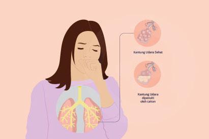 Perbandingan kantong udara sehat dan kantong udara yang penuh cairan pada penderita pneumonia