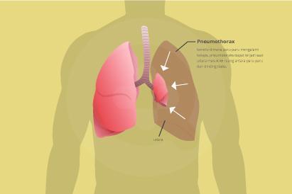 Gejala utama yang terjadi biasanya meliputi nyeri dada mendadak dan sesak