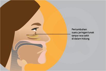 Polip hidung merupakan peradangan kronis karena asma, infeksi berulang dan alergi.