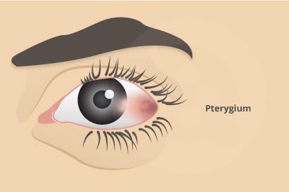 Pterygium ditandai dengan mengeruhnya selaput permukaan bola mata di sebelah ataupun kedua mata.