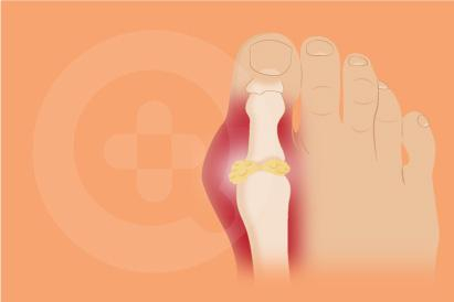 Penyakit asam urat ditandai dengan bengkak dan nyeri pada sendi yang biasanya terjadi pada kaki