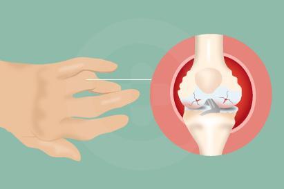 Rheumatoid artritis sering terjadi pada daerah pergelangan tangan maupun kaki.