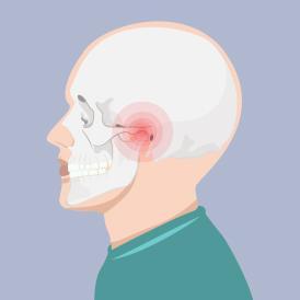 Penyebab rahang sakit dapat berasal dari otot, sendi atau tulang di area rahang