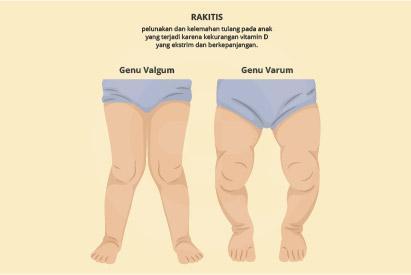 Rakitis merupakan perubahan bentuk pada tulang seperti kaki membengkok dan pergelangan tangan atau kaki yang menebal