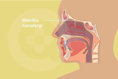 Rhinitis non-alergi terjadi di dalam hidung
