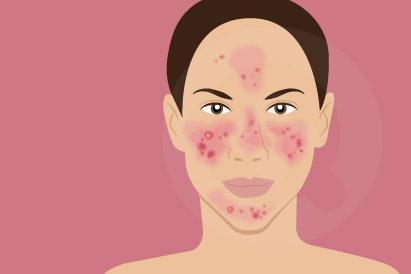 Rosacea dapat diperburuk dengan konsumsi alkohol, penggunaan kosmetik, dan infeksi bakteri atau tungau.