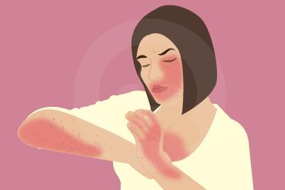 Seminal plasma hypersensitivity bisa memicu rasa gatal, bengkak, maupun kemerahan.
