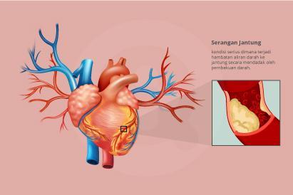 Merokok dan memiliki kadar kolestrol tinggi meningkatkan risiko terkena serangan jantung.