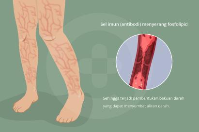 Sindrom antifosfolipid (APS) adalah penyakit autoimun, dimana sel imun (antibodi) menyerang fosfolipid.