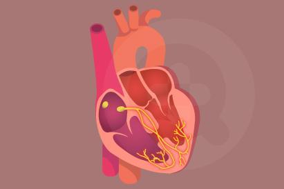 Sindrom Brugada biasanya terjadi karena faktor keturunan, tapi demam yang tinggi juga bisa memicunya