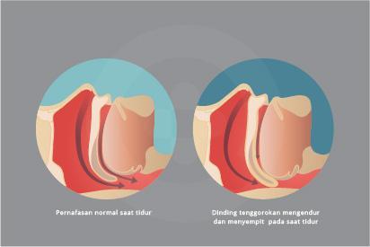 Penyumbatan pada dinding tenggorokan dapat mengganggu pernapasan pada saat tidur.