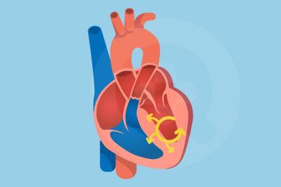 Takikardia adalah kondisi dimana detak jantung berdetak lebih dari 100 kali per menit