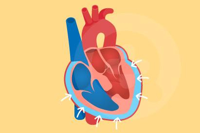 Gejala tamponade jantung adalah tekanan darah rendah dan denyut nadi teraba lemah.