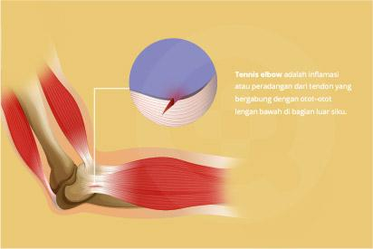 Tennis elbow  biasanya dapat sembuh sendiri